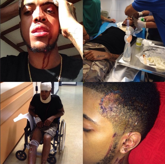"""BRITHOPTV: [News] Chip: """"I'm just merciful to be a live"""". North London rapper on his quad bike accident in Malia 
